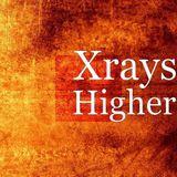 XReys Master A/B