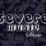 #SevereMusicShow - Number 02