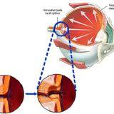 #BincangSehat RSUD Kartini: Glaukoma