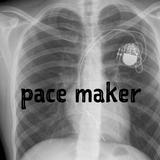 Pace Maker