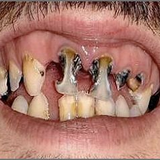 The History of Gappy Tooth Part 3