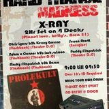 X-ray LIVE @ The Theatre Greystones Co Wicklow.