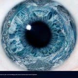 Eye Session 01 October 2014
