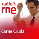 Beatmac en Carne Cruda. Radio 3. Segunda Parte.
