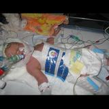 Hospital Neglect During Child Birth