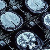 POD Alzheimer - Dr. Michael Nehls