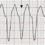Ventricular Arrhythmias, Escape Rhythms, Artifact