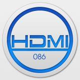 HD:MI Episode 86