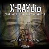X-RAYdio 19/02/2013 Butterflies