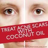Treat Acne Scars with Coconut Oil… A Superfood for Clear Skin
