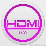 HD:MI Episode 76