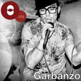 """Concepto Mix #170 Garbanzo """"Tengo un piquete mix"""""""