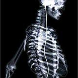 X-ray - Not Forgotten Vol 1
