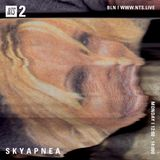 SKYAPNEA - 25th September 2017