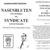 Nasenbluten - Undesended Testicles 1994