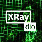 TApWATER_For_XRaydio_001