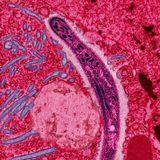 Malária causa apenas anemia. Outros sintomas vêm da inflamação exagerada