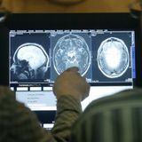 Multiple Sklerose - Eine Nervenkrankheit auf dem Vormarsch?
