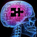 RCM prepara  conferencia mundial  sobre los efectos del Alzheimer en la población latina.
