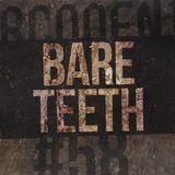 SPORCODENTRO #058 - Sporco meets Bare Teeth Records 2017/11/16