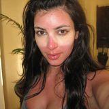 Strange Sunburns