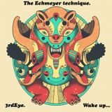 The Echmeyer technique