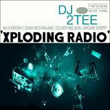 'Xploding Radio'