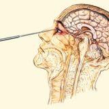 Brain Lobotomy (DeadLift mix)