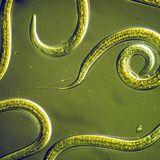 Artrite é menos grave no Brasil que em países desenvolvidos. O segredo? Muitos vermes...
