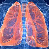 EsSalud: Causas y tratamiento para la fibrosis pulmonar