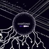 Xeno & Rhizome - Overtones #3 @ Drums.ro Radio (10.05.2018)