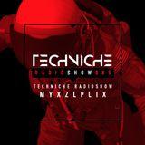 TRS085 Techniche Radioshow: Myxzlplix