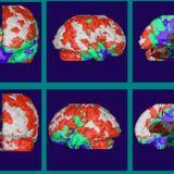 Bipolar Brain