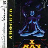 X-Ray - SHOCKER... 1995