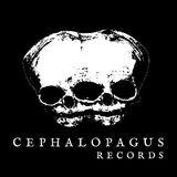 Cephalopagus_Records