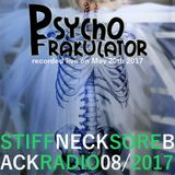 Stiff Neck, Sore Back Radio 08/2017