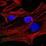 Kako dobro poznamo svojih 100 bilijonov celic? (ZmK-11)