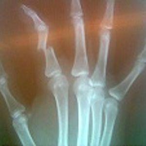 Broken Finger Session
