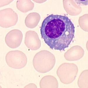Plasmocyte