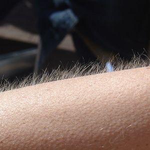 Yoast - Vocal Shivers