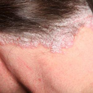 Ayurvedic Management of  Skin Problems