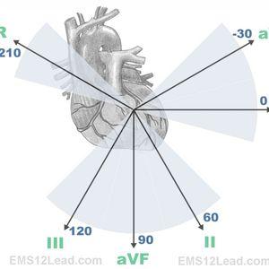 EKG Leads