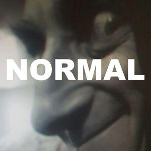 RADIO'X'OVER x637 - NORMAL