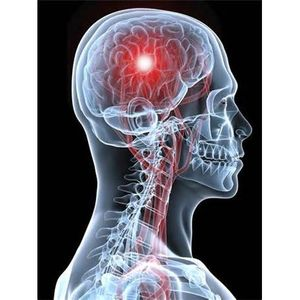 Health Alert: Are You At Risk For A Stroke?