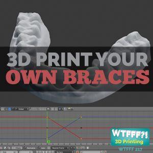 WTFFF 217: 3D Print Your Own Braces