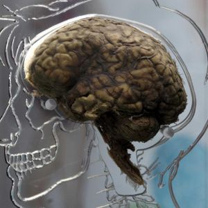 Back to basics with brain mechanisms