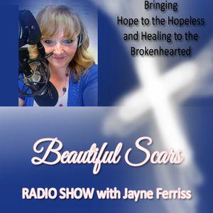 Beautiful Scars Radio Show 4