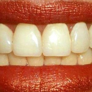 Teeth (Aug 29, 2007)