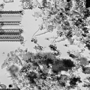 Twin Peetz : Microscopic 012 (May2015)