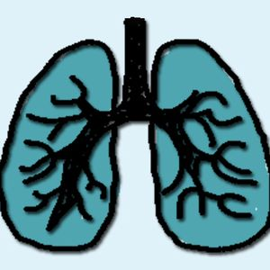 171. Lung Cancer
